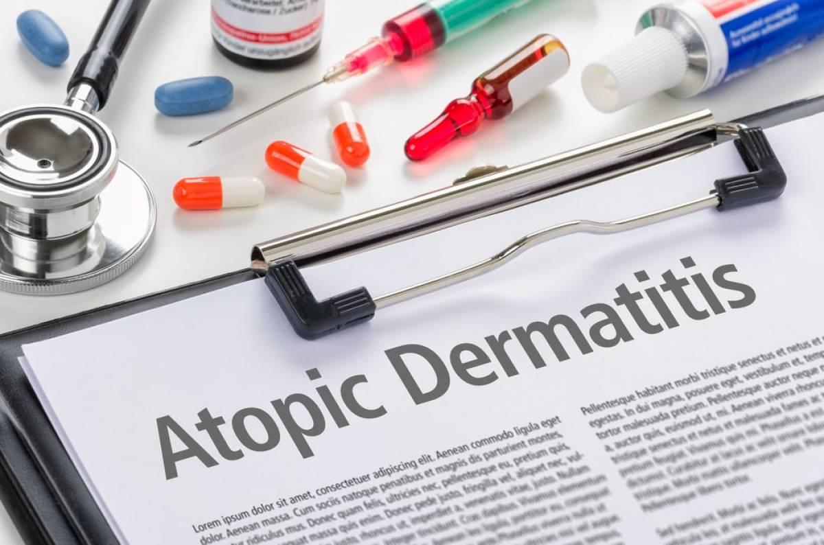 Ατοπική Δερματίτιδα: Εμφάνιση και Θεραπείες