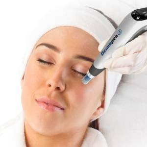 dermapen microneedling θεραπεία πανάδων
