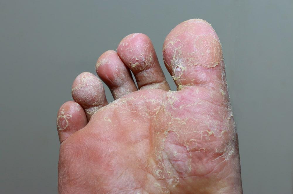 μυκητίαση, πόδι του αθλητή στο πέλμα φωτογραφία