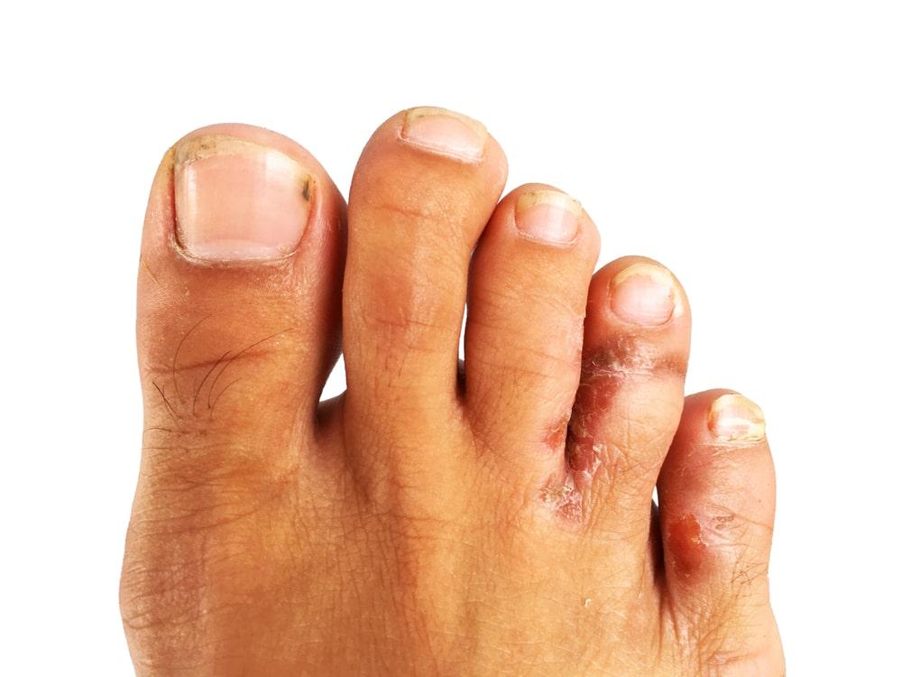 μύκητες στα δάχτυλα των ποδιών φωτογραφία