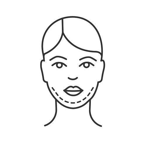 αφαίρεση λίπους στο πρόσωπο για να μειώσουμε το διπλοσάγωνο με microlipo