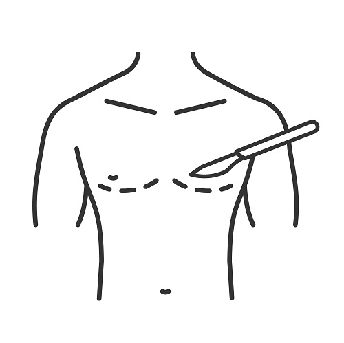 αφαίρεση λίπους από το στήθος για άντρες που παρουσιάζουν γυναικομαστία αλλά και για γυναίκες που θέλουν να μειώσουν τον όγκο