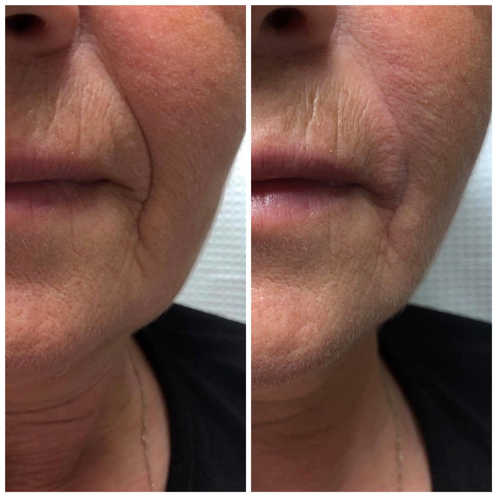 υαλουρονικό οξύ σε ρυτίδες γυναίκας πριν και μετά