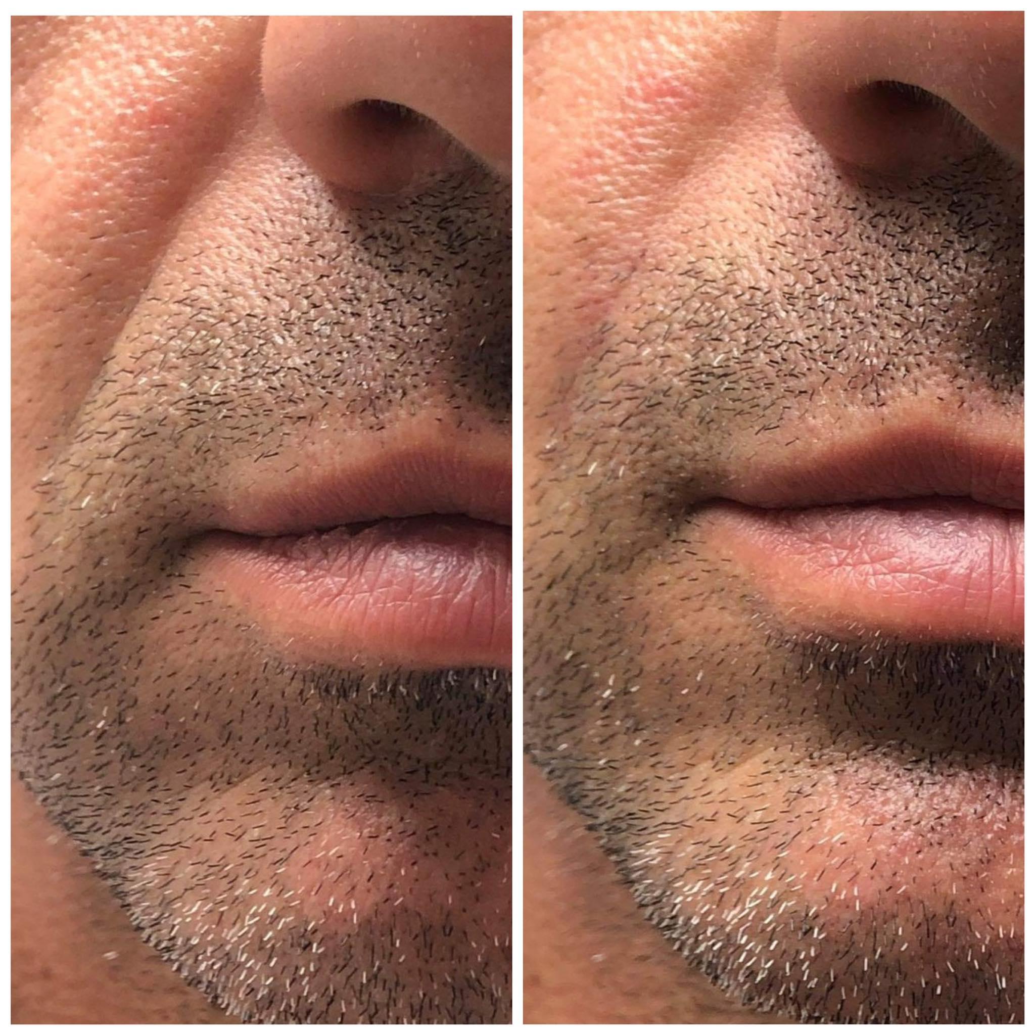 υαλουρονικό οξύ σε ρυτίδες άντρα πριν και μετά