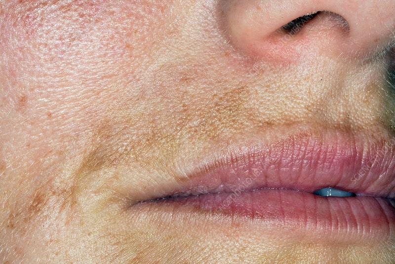 πανάδα στο μουστάκι γυναίκα φωτογραφία