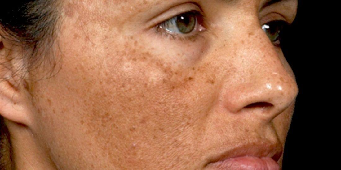 μέλασμα - πανάδες στο μάγουλο φωτογραφίες